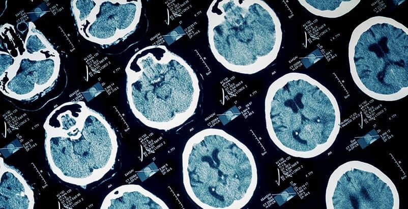Chicago Brain Injury Attorneys